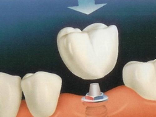 Šta su implantati?