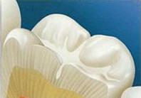 Ko je kandidat za ugradnju zubnih implantata? 3