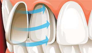 Krunice za zube 2