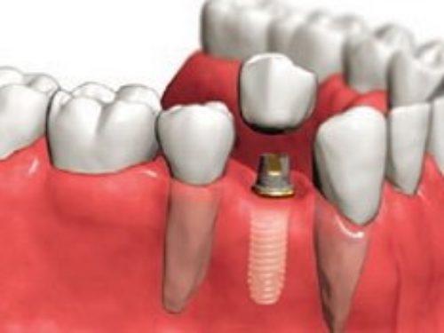 Postupak postavljanja zubnih implantata