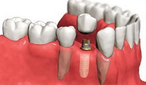 implanti, implantati, zubni