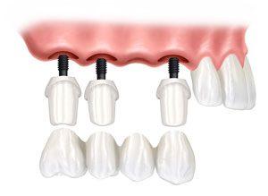 U kojim situacijama ugraditi zubne implantate 5