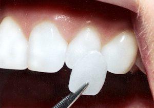 fasete za zube, zubne fasete