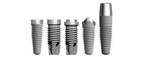 U kojim situacijama ugraditi zubne implantate 2