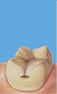 Inleji i Onleji na zubima koje je razorio karijes 1