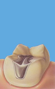 Inleji i Onleji na zubima koje je razorio karijes 4