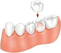 Krunice za zube 1