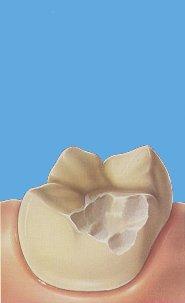 Inleji i Onleji na zubima koje je razorio karijes 5