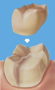 Inleji i Onleji na zubima koje je razorio karijes 7