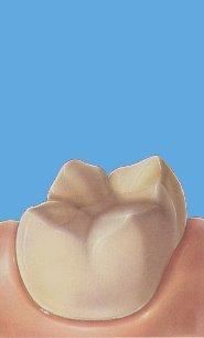 Inleji i Onleji na zubima koje je razorio karijes 8
