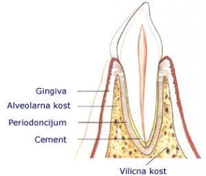 izgled zdrave kosti parodontopatija