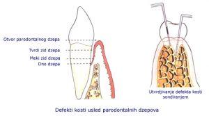 propadanje kosti kod parodontopatije
