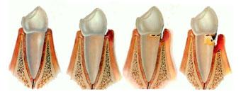 stadijumi parodontopatije