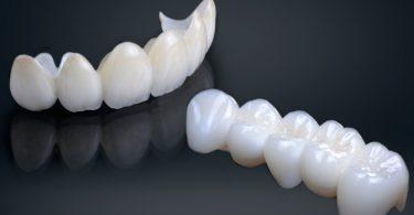 Bolest desni, upala gingive ili gingivitis 3