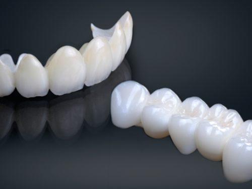 Most kao nadoknada za izgubljene zube