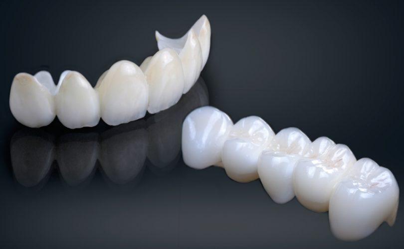 Mostovi kao nadoknada za izgubljene zube 1