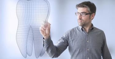 Parodontopatija zuba 7 pitanja o paradontozi 1